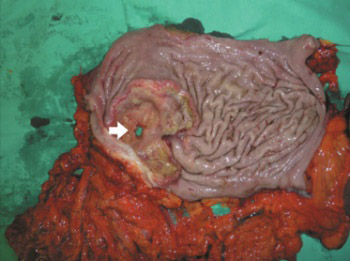 Perforation of gastric cancer - What should the surgeon do?