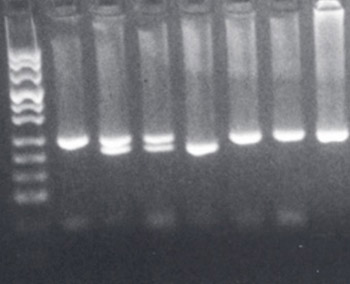 Frequency of CCR5Δ32 allele in healthy Bosniak population.