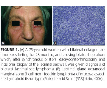 Clinical significance of routine lacrimal sac biopsy during dacryocystorhinostomy: A comprehensive review of literature