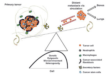 Cancer metastasis - tricks of the trade