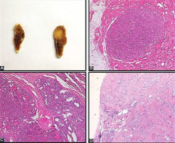 Follicular morphological characteristics may be associated with invasion in follicular thyroid neoplasms with papillary-like nuclear features