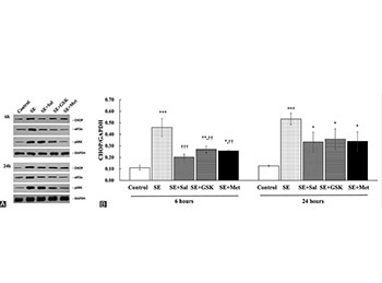 The effect of metformin treatment on endoplasmic reticulum (ER) stress induced by status epilepticus (SE) via the PERK-eIF2α-CHOP pathway