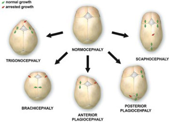 Craniosynostosis - Recognition, clinical characteristics, and treatment