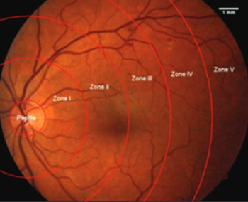 C - reactive protein and chitinase 3-like protein 1 as biomarkers of spatial redistribution of retinal blood vessels on digital retinal photography in patients with diabetic retinopathy