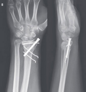 Is minimally invasive application by intramedullary osteosynthesis in comparison with volar plating real benefit in the treatment of distal radius fractures?