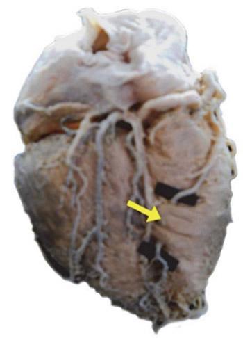 Morphological aspects of myocardial bridges