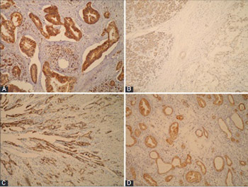 Immunohistochemical expression of NEDD9, E-cadherin and γ-catenin and their prognostic significance in pancreatic ductal adenocarcinoma (PDAC)