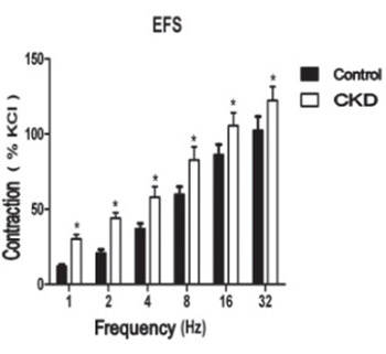 Contractile responses of urinary bladder in an experimental model of chronic renal failure
