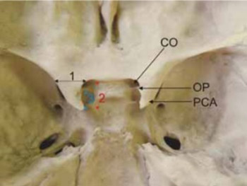 Anatomical variations and morphometric study of the optic strut and the anterior clinoid process