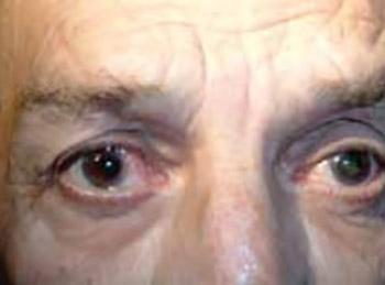 Prostatic carcinoma bilateral iris metastases