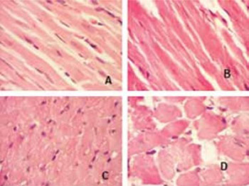 Heart-type fatty acid-binding protein and its relation with morphological changes in rat myocardial damage model induced by isoproterenol