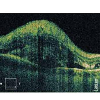 Bilateral retinal detachment in a case of preeclampsia