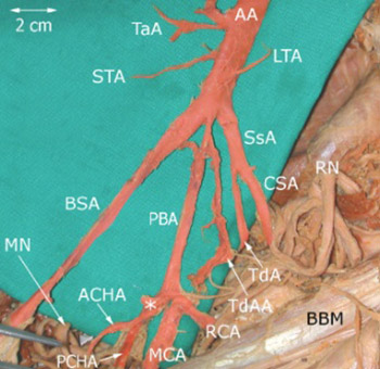 Vascular patterns of upper limb: an anatomical study with accent on superficial brachial artery