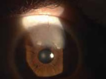 Ocular manifestation of rheumatoid arthritis-different forms and frequency