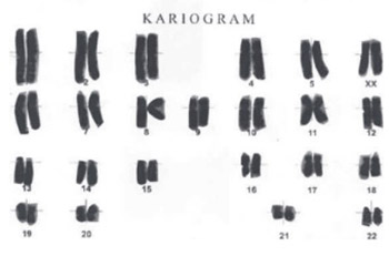 The Impact of Rituximab Therapy on the Chromosomes of Patients with Rheumatoid Arthritis