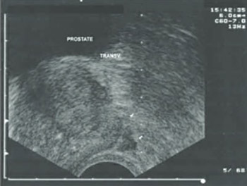 Transrectal Ultrasound-Guided Prostate Biopsy, Periprostatic Local Anesthesia and Pain Tolerance