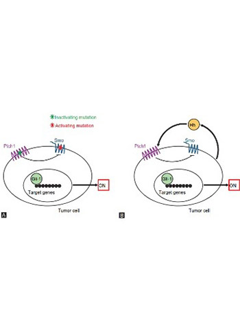 The role of the Hedgehog signaling pathway in cancer: A