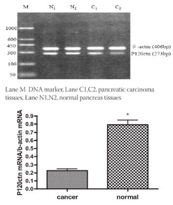 Expression and Clinical Significance of P120 Catenin mRNA and Protein in Pancreatic Carcinoma