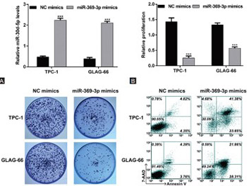 Downregulation of TSPAN13 by miR-369-3p inhibits cell proliferation in papillary thyroid cancer (PTC)