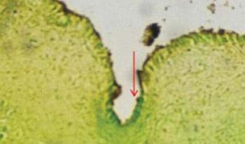In Vitro Examination of Ontogenesis of Developing Neuronal Cells in Vagal Nuclei in Medulla Oblongata in Newborns