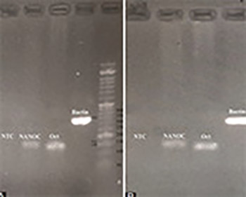 Human amniotic fluid stem cells (hAFSCs) expressing p21 and cyclin D1 genes retain excellent viability after freezing with (dimethyl sulfoxide) DMSO