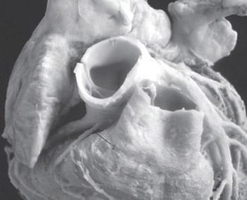 Third Coronary Artery