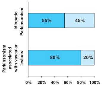 Doppler Sonography Characteristics of Vertebrobasilar Circulation In Patients With Parkinson's Disease