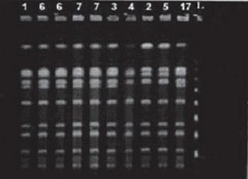 Epidemiologic Genotyping of Methicillin-Resistant Staphylococcus aureus (MRSA) by Pulsed-Field Gel Electrophoresis (PFGE)