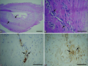 Immune cells and vasa vasorum in the tunica media of atherosclerotic coronary arteries