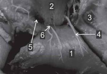 Vascularisation of Pectoralis Maior Myocutaneous Flap - Anatomical Study in Human Fetuses and Cadavers