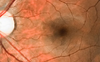 Electroneurography of Right Median and Ulnar Nerves in Diabetic Patients With and Without Retinopathy