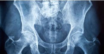 Management of Chronic Nonbacterial Prostatitis/Chronic Pelvic Pain Syndrome