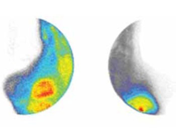 99mtc-Sestamibi Scintimammography in Detection of Recurrent Breast Cancer