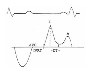 Left Venticular Diastolic Dysfunction in Essential Hypertension
