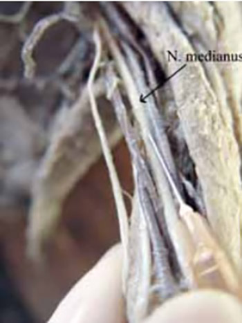 Injection Pressure as a Marker of Intraneural Injection in Procedures of Peripheral Nerves Blockade