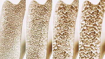 Osteoporosis - Current Trends in Diagnosis and Management
