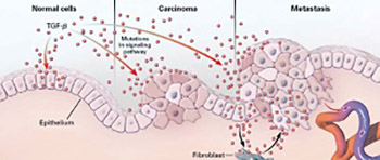 The Role of the Stroma in Carcinogenesis