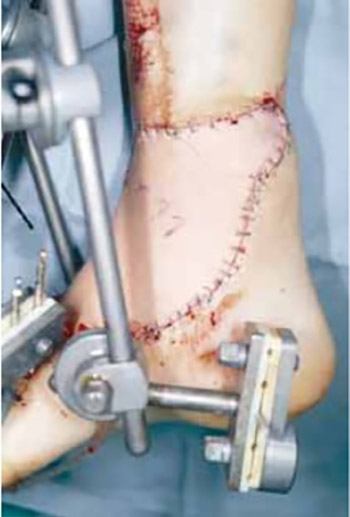 Timing of management of severe injuries of the lower extremity by free flap transfer