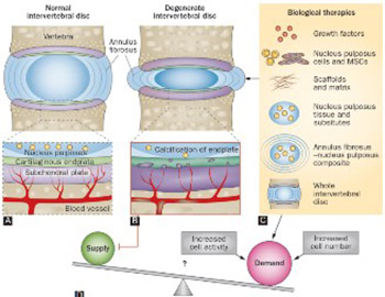 Intervertebral disc tissue engineering: A brief review