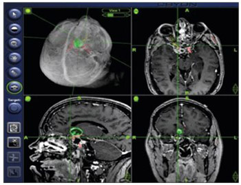 Feasibility and accuracy of a voxel-based neuronavigation system with 3D image rendering in preoperative planning and as a learning tool for young neurosurgeons, exemplified by the anatomical localization of the superior sagittal sinus