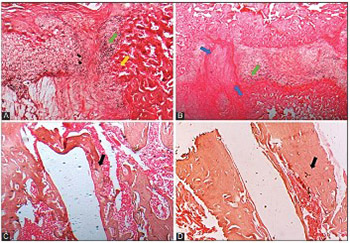 Enhancement of bone consolidation using high-frequency pulsed electromagnetic fields (HF-PEMFs): An experimental study on rats