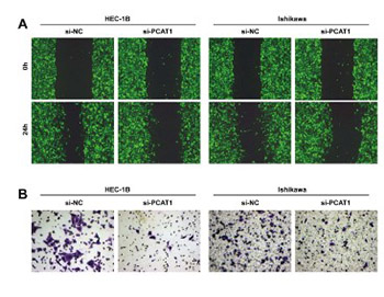 PCAT1 is a poor prognostic factor in endometrial carcinoma and associated with cancer cell proliferation, migration and invasion
