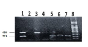 Age- and gender-independent association of glutathione S-transferase null polymorphisms with chronic myeloid leukemia