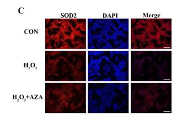 Effect of SOD2 methylation on mitochondrial DNA4834-bp deletion mutation in marginal cells under oxidative stress