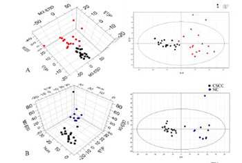 Tissue-based metabolomics reveals potential biomarkers for cervical carcinoma and HPV infection