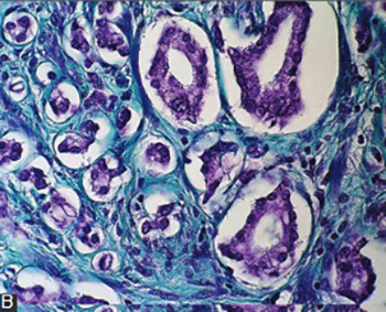 Prostate cancer stroma: an important factor in cancer growth and progression