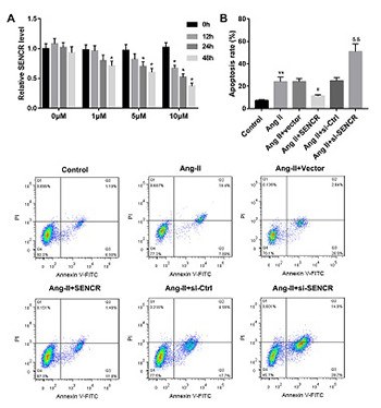 LncRNA SENCR suppresses abdominal aortic aneurysm formation by inhibiting smooth muscle cells apoptosis and extracellular matrix degradation