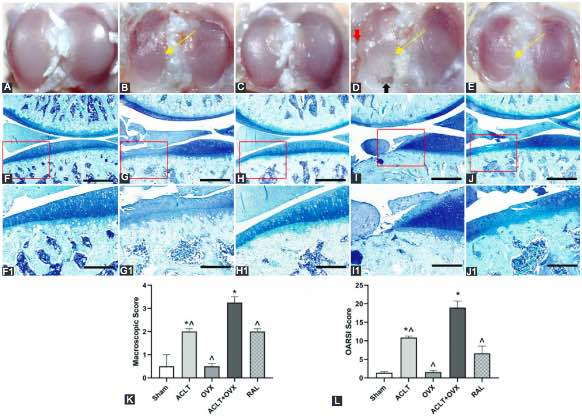 Raloxifene inhibits the overexpression of TGF-β1 in cartilage and regulates the metabolism of subchondral bone in rats with osteoporotic osteoarthritis