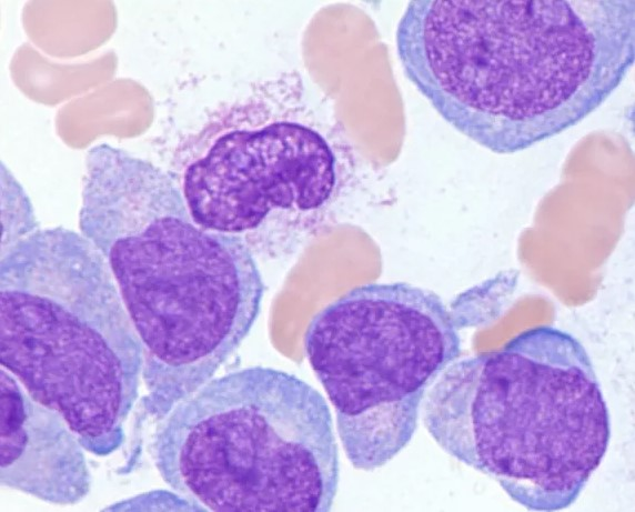 Recent advances of targeted therapy in relapsed/refractory acute myeloid leukemia
