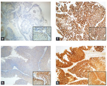 Prognostic significance of survivin, β-catenin and p53 expression in urothelial carcinoma